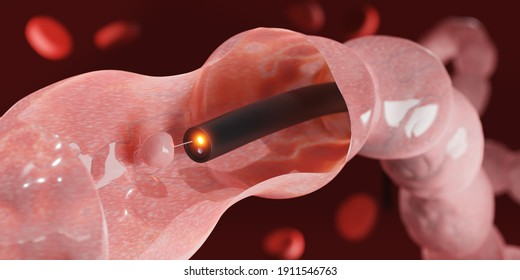 Colon Polyp Removal. Endoscope inside colonoscopy for Colon polyps search. 3d render.
