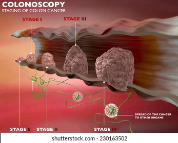Colonoscopy examination colon digestive system