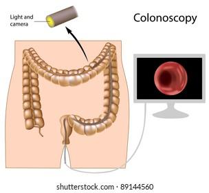 Colonoscopy procedure used in screening colon pathology