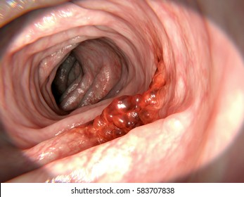 Colorectal cancer. 3d rendering.