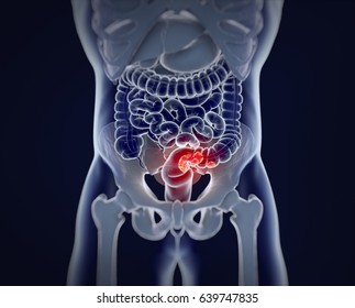 Colorectal cancer,medical anatomical illustration.3d illustration