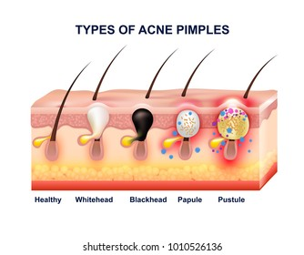 Colored skin acne anatomy composition with types of acne pimples before and after  illustration