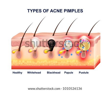 Colored Skin Acne Anatomy Composition Types Stock Illustration