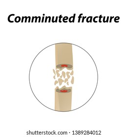 Comminuted fracture Bone. Infographics. illustration on a lined background.