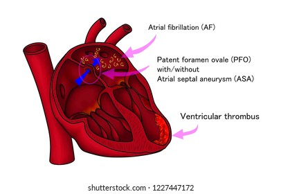 The common cardiac embolism as as source of ischemic stroke. Atrial fibrillation, PFO, Ventricular thrombus are among the well known sources of emboli.