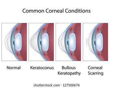 Common corneal conditions, eye cornea diseases