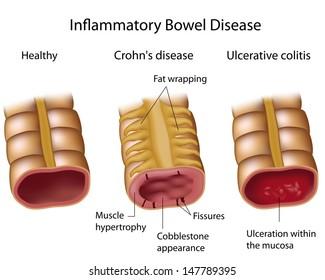 Compare Crohns and Ulcerative colitis