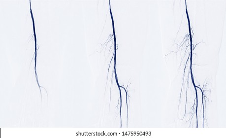 Femoral Artery Images, Stock Photos & Vectors | Shutterstock