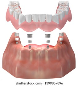 Complete Denture putting on lower jaw via ball attachment. Implant supported  3D illustration.