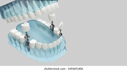 Component of Dental implants. Blue color transparent. 3D illustration, 3D rendering.