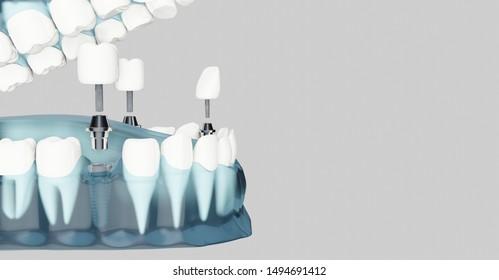 Component of Dental implants and copy space. Blue color transparent. 3D illustration, 3D rendering.