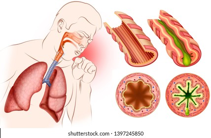 Composition of a person affected by Asthma and two sections of the bronchi, in which there is a healthy one and another affected by this disease.