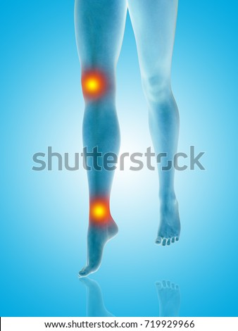 361b40fea8b Conceptual beautiful woman or girl legs and feet with a hurt knee and ankle  pain or