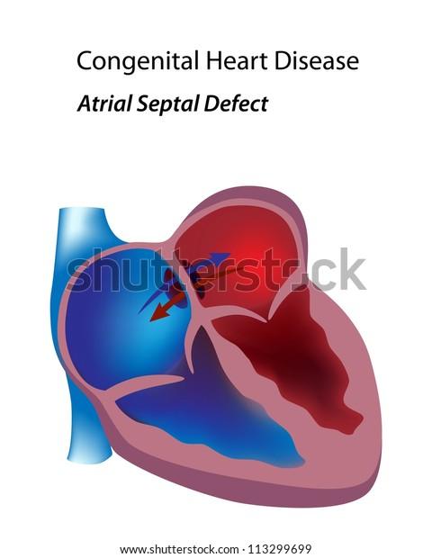 Congenital heart disease: atrial septal defect