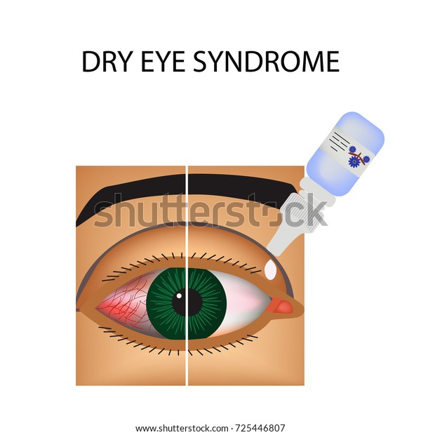Conjunctivitis. Redness and inflammation of the eye. Vessels. Eye drops. Treatment. Infographics. illustration on isolated background.