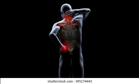 contracture back