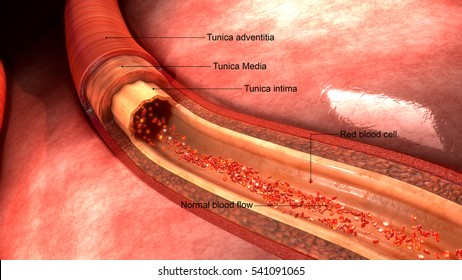 Coronary artery 3d illustration