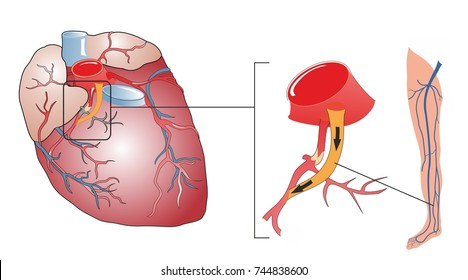 Coronary artery bypass surgery is a procedure to replace an obstructed coronary vessel with a graft. A vein from the patient's leg is grafted to the coronary artery to bypass a blockage.