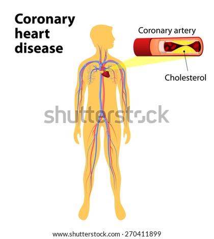 Coronary Artery Disease Human Vascular System Stock Illustration ...