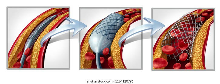 Coronary stent and angioplasty concept as a heart disease treatment symbol diagram with the stages of an implant procedure in an artery that has cholesterol plaque blockage as a 3D illustration.