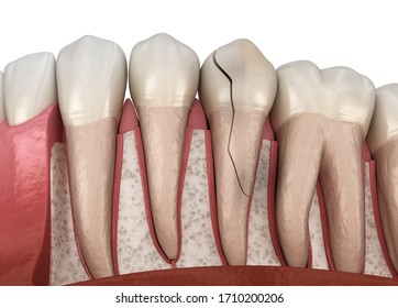 Cracked tooth, splitted. Medically accurate 3D illustration