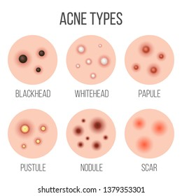 Creative illustration types of acne, pimples, skin pores, blackhead, whitehead, scar, comedone, stages diagram isolated on background. Art design . Abstract concept graphic element