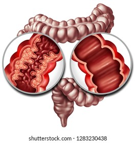 Crohn syndrome disease or digestion illness and healthy colon as a medical concept with a close up of a human intestine with inflammation symptoms causing obstruction as a 3D illustration.