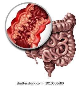 Crohns disease or crohn illness medical concept as a close up of a human intestine with inflammation symptoms causing obstruction as a 3D illustration.