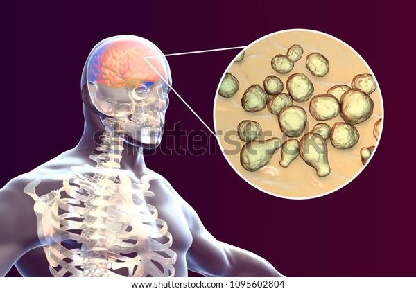 Cryptococcal meningitis, 3d illustration. Pathogenic yeast fungus Cryptococcus neoformans causes meningoencephalitis in patients with AIDS