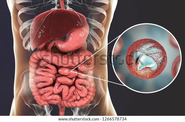 Cryptosporidiosis, a diarrheal disease caused by Cryptosporidium parvum protozoan. 3D illustration showing release of parasite sporozoites from oocyst inside small intestine