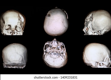 CT 3d rendering image of a patient with severe skull depression fracture at left frontal area with left zygomatic arch and both maxillary sinuses fractures with small subarachnoidal hemorrhage.
