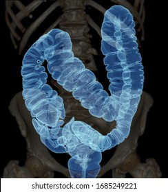 CT colonography  or CT Scan of Colon 3D Rendering image AP view  showing colon for screening colorectal cancer. Check up Screening Colon Cancer.