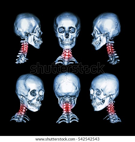 Ct Scan 3 D Image Skull Neck Stock Illustration Royalty Free Stock
