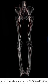 CT SCAN 3D of vascular of both with transparent bone. CTA Peripheral run-off