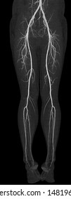 CT SCAN of vascular of both leg in anterior view. Peripheral run-off