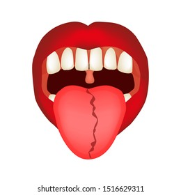 Curvature of the midline of the tongue. Definition of a disease according to human tongue. Diagnostics by tongue. Tongue illustration on isolated background.