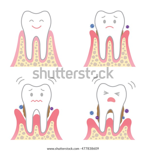 cute cartoon character of periodontal disease. four stages of gum disease symptoms