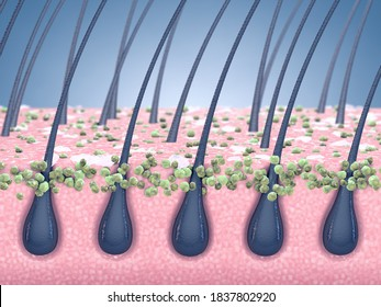 Dandruff prevention and antifungal treatment, 3d illustration of human scalp hair roots and fungal infection