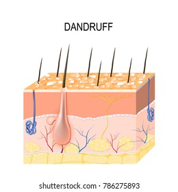 Dandruff. seborrheic dermatitis can occur due to dry skin, bacteria and fungus on the scalp. It causes formation of dry skin flakes on the scalp. Layers of the human skin