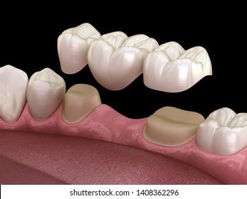 Dental bridge of 3 teeth over molar and premolar. Medically accurate 3D illustration of human teeth treatment