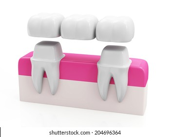 Dental Bridge Concept. Dental Crown on a Tooth isolated on white background