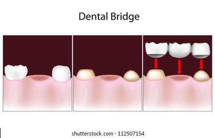 Dental bridge procedure