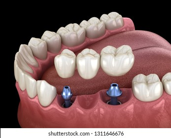 Dental bridge supported by implants. Medically accurate 3D illustration of human teeth and dentures concept