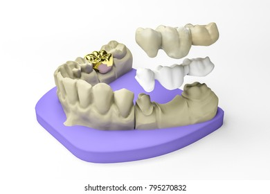 dental care 3d rendering