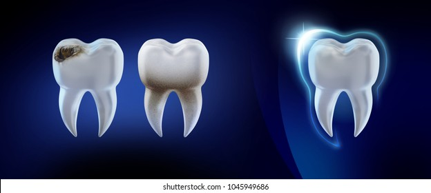 Dental concept. 3d render illustration clean and dirty tooth isolated on blue, clearing tooth process. Teeth Whitening. Oral Care, teeth restoration.