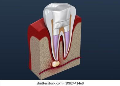 Dental fillings procedure diagramm . 3D illustration