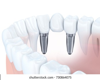 Dental human implant bridge. 3d illustration
