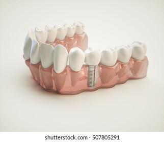 Dental implant - 3d rendering