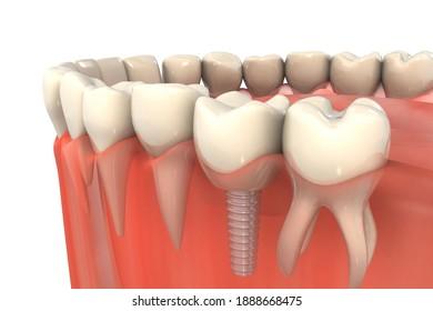 Dental implant installation process. 3d illustration