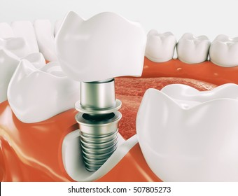 Dental implant - Series 2 of 3 - 3d rendering